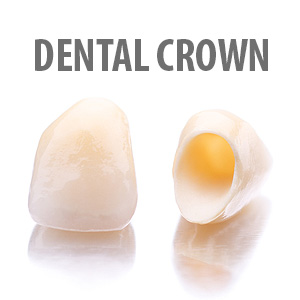 4 Situations Where a Crown Could Improve an Existing Tooth