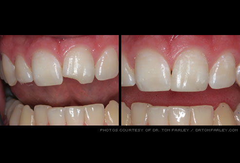 Cosmetic Dentistry: Before and After - Robert S Arnold, DDS
